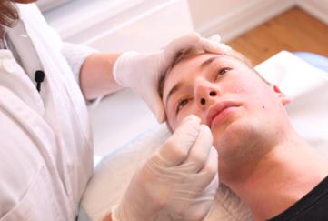behandling_af_acne
