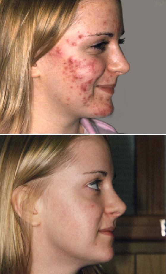 hvad er acne