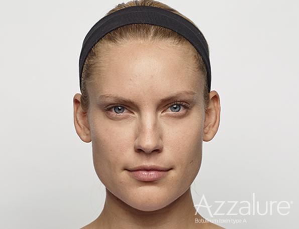 Efter behandling med botox