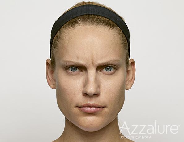 Botox behandling af rynker