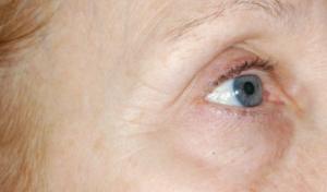 Pigment forandringer og pletter på huden kan behandles med peeling/kemiskpeeling i Odense