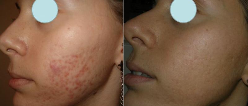 behandling af ar i ansigtet
