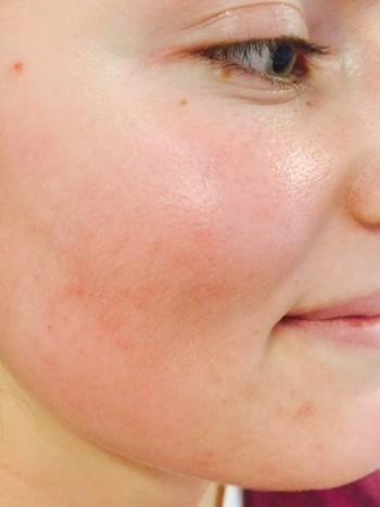 akne behandling med laser