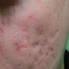 Ar ansigt før micro-needling