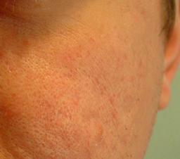 fjernelse af acne ar