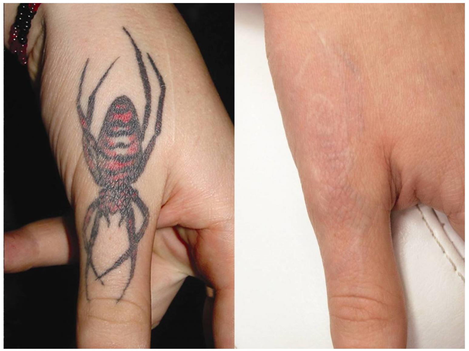 fjern tatovering københavn