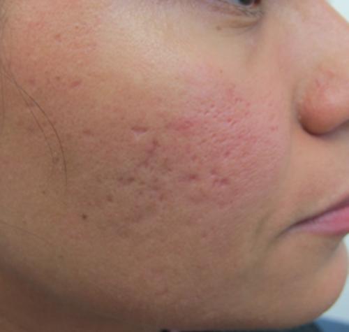 huller i huden i ansigtet