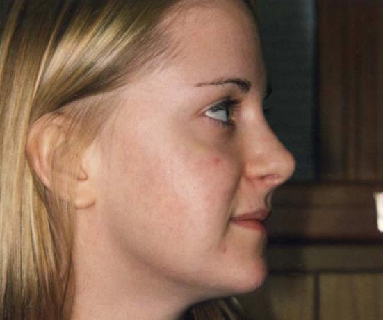 Akne efter laserbehandling