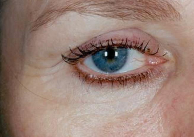 rynkebehandling af rynker omkring øjne efter