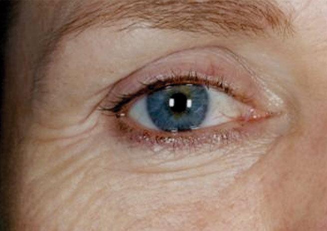rynkebehandling af rynker omkring øjne før