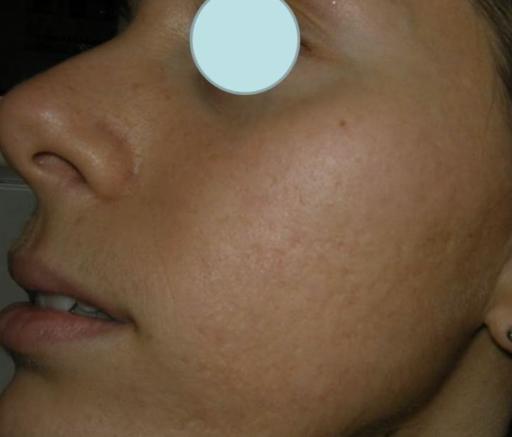 akne ar efter laserbehandling og subcision